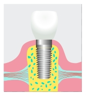 dental implant Frederick