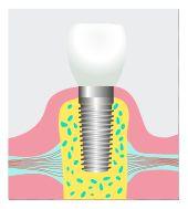 dental implant Frederick