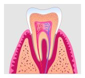 root canal in Frederick